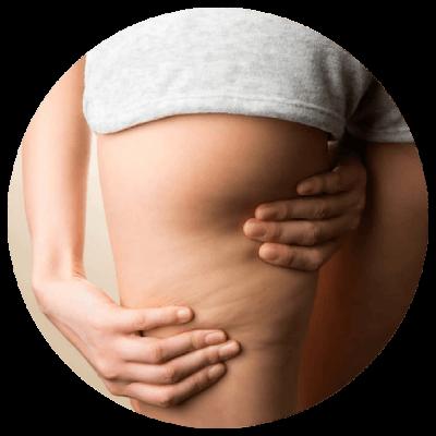 Cellulit podczas ciąży.